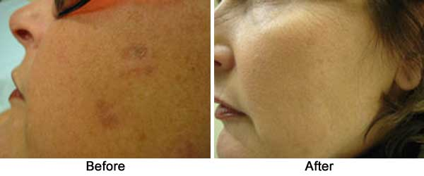 Age/Sunspot Removal