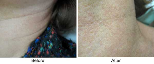 Pigmentation on Neck