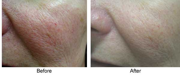Rosacea 1 Maintenance Tx