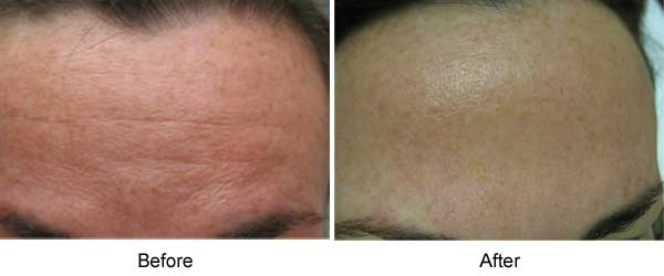 Photodamage: IPL and Laser Genesis Treatment on the forehead