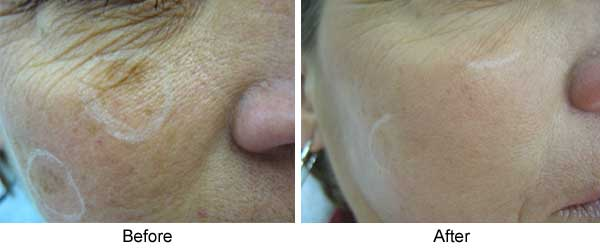 Sun/Age spots 1 Treatment