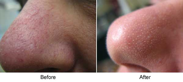 Nose vessels before and after